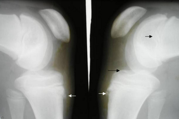 via Pediatric Rheumatology (see that little bone flopped up at the bottom?  That's what I did).